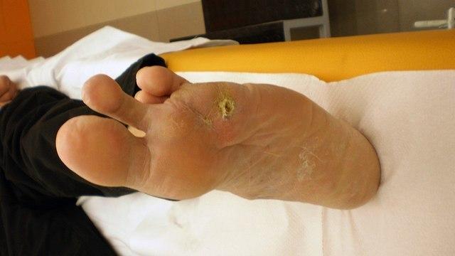 Почему диабет может закончиться ампутацией ноги