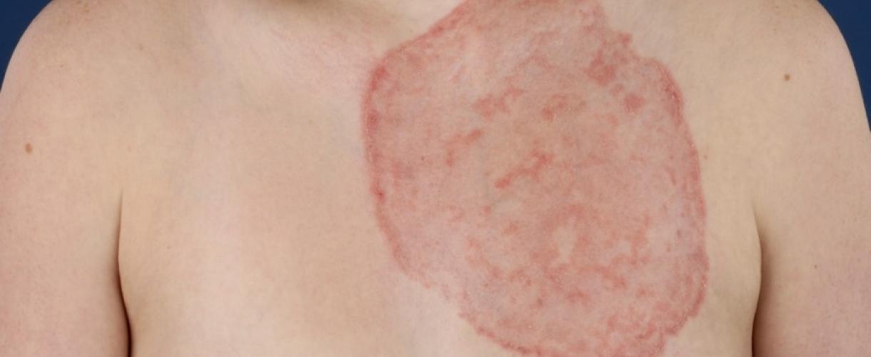 Дерматомикоз: симптомы и лечение