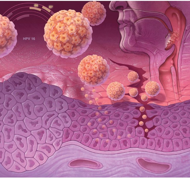 Человеческий вирус папилломы и лечебное питание