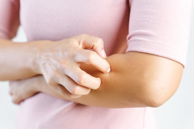 Аллергический зуд: как снять неприятный симптом быстро и эффективно?