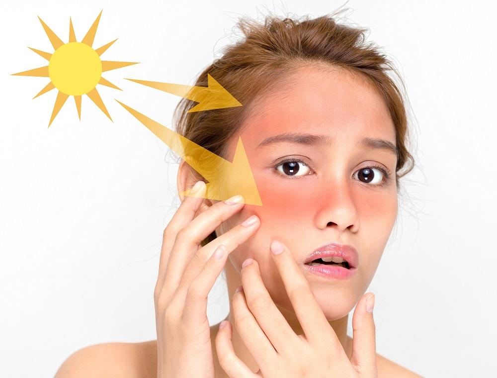 Первая помощь и лечение обожженной на солнце кожи